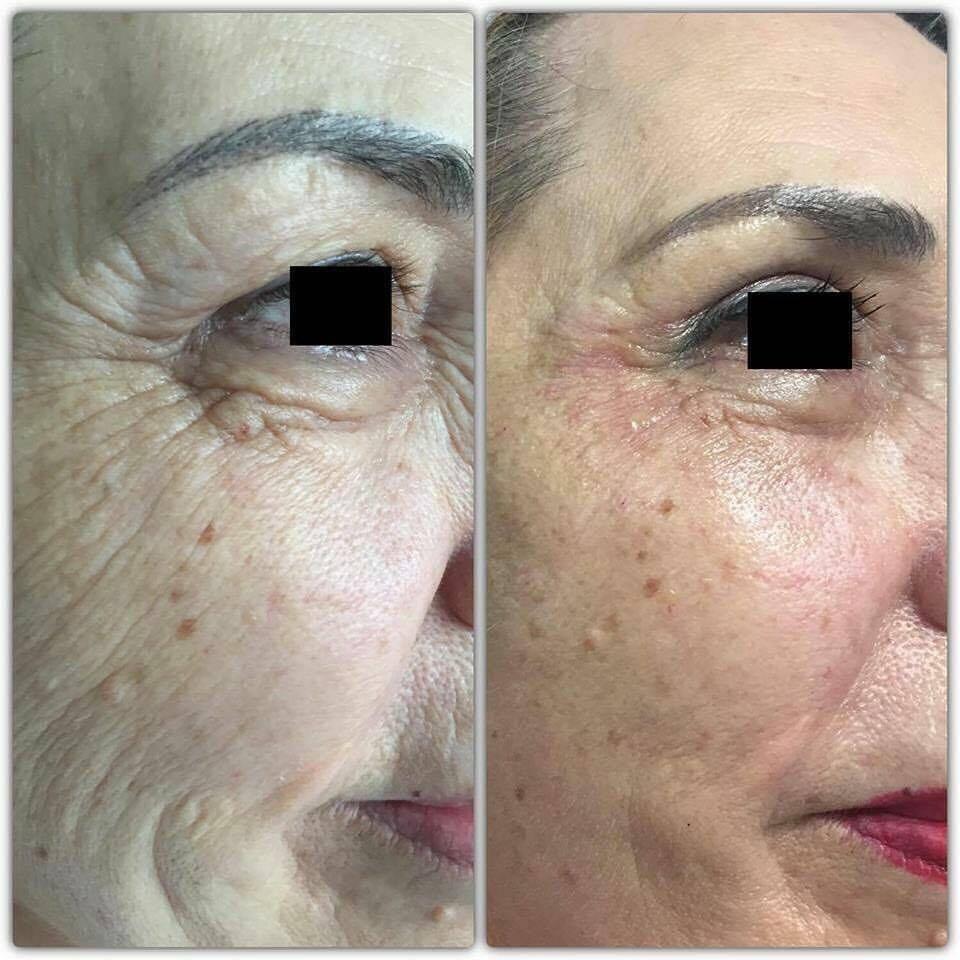 Microneedling Medical (facial)
